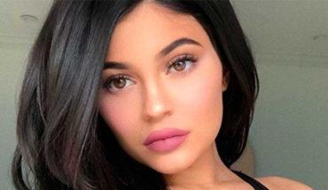 Esta es la razón por la que Kylie Jenner se deshizo del relleno de sus labios