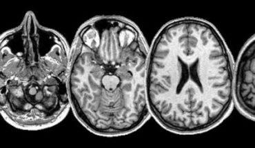 Por comer carne contaminada, cerebro de una niña se infesta de gusanos