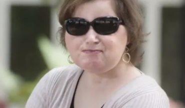 La mujer más joven en recibir un transplante de rostro