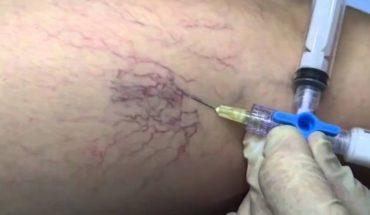 Las várices pueden ocasionar trombosis