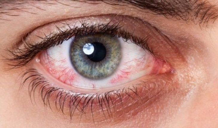 What is and how to prevent dry eye syndrome?