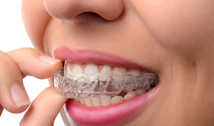 Bruxismo es el hábito de apretar o rechinar los dientes durante el sueño