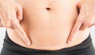 Cicatriz de la cesárea: Conoce el tratamiento sin cirugía para atenuar esta huella que a muchas avergüenza