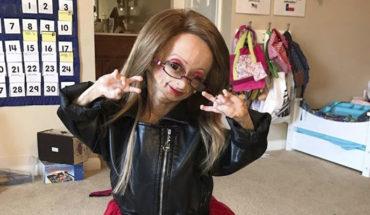 Ella es Adalia Rose, la niña de 11 años con síndrome de envejecimiento
