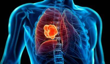 Estigma del cáncer de pulmón frena acceso a tratamientos en América Latina
