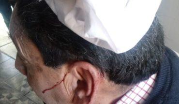 Proxy hit a sillazo a teacher in Chimbarongo