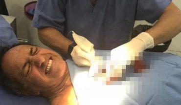 Daniel Scioli se accidentó jugando futsal y debió ser intervenido quirúrgicamente