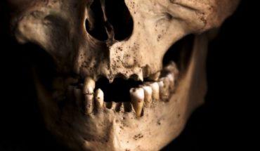 Hallan 1.000 dientes humanos dentro de una pared (Fotos)