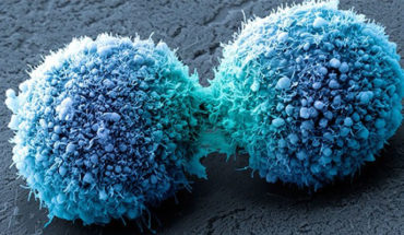 """Investigan en Londres nueva cura potencial del cáncer de páncreas mediante """"células asesinas"""""""