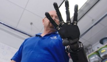 Conocé al hombre que vive con el brazo robótico más avanzado del mundo