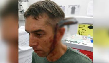 """Hombre llega al hospital con un cuchillo en su cabeza y dice """"¿Tiene un médico libre?"""""""