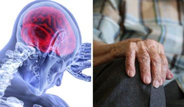 """""""Marcapasos cerebral"""" podría tratar epilepsia y párkinson"""