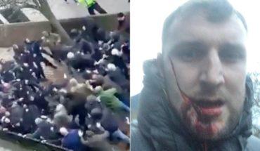 Le destrozaron su rostro tras batalla campal entre hooligans de Everton y Millwall