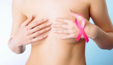 Qué son las calcificaciones mamarias y cómo se diagnostican