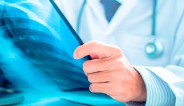 Si padeces alguna enfermedad rara, podrían tardar hasta 20 años en diagnosticarte