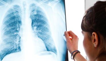 Vacunas, escudo contra la tuberculosis: IMSS Michoacán