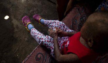 """Una oportunidad para Milagros, la niña """"piel de pescado"""" de Nicaragua"""