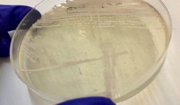 "Detectan primera ""superbacteria"" en Chile en Hospital del Salvador"