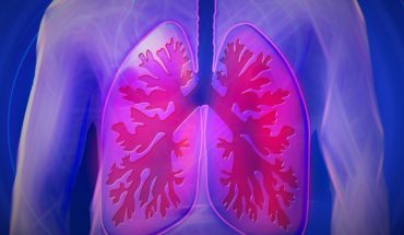 Do you have cough and feel lack of air and difficulty breathing? It can be idiopathic pulmonary fibrosis