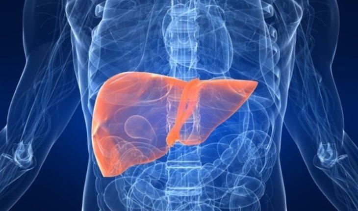 Un tercio de la población tiene síndrome de hígado graso no alcohólico