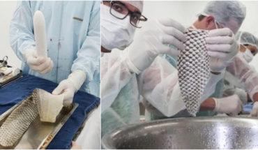 Lograron implantar vagina con piel de pescado a una mujer trans, en Colombia