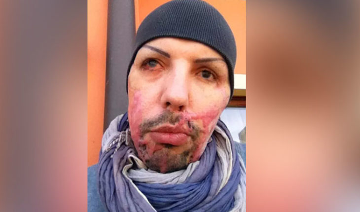 Man shows images of his face after being attacked with acid by his ex-girlfriend