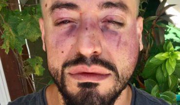 Diseñador de indumentaria denunció que fue víctima de un ataque homofóbico