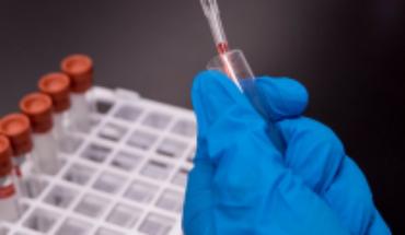 Lista de espera para la vacuna de la influenza crece un treinta veces en comparación al año 2019