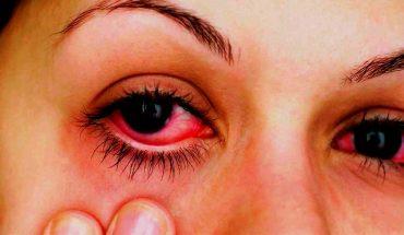 ¿Cómo actuar cuando cae por accidente cloro en los ojos?