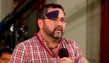 Journalist of the morning forgets his patch and leaves his eye exposed (Video)