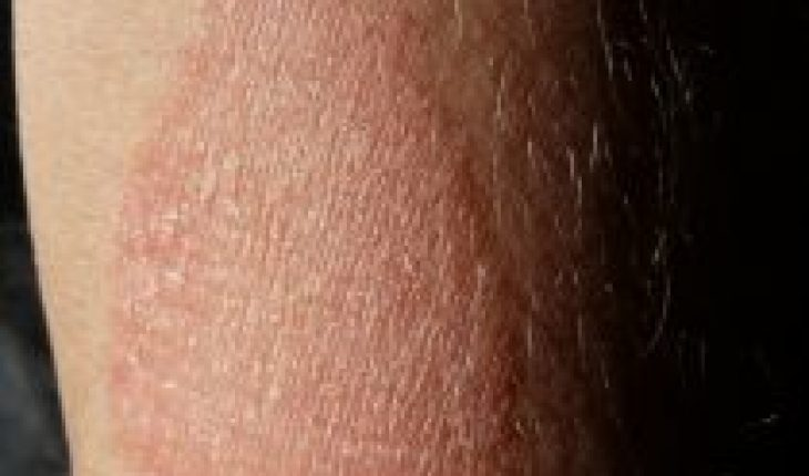 Patients with atopic dermatitis perceive an increase in skin reactions and uncontrollable itching at night