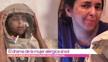 La dramática vida de una mujer por alergia al Sol | Vivalavi
