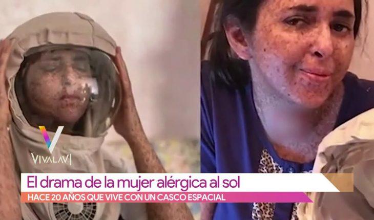 La dramática vida de una mujer por alergia al Sol   Vivalavi