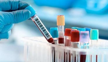 Vaccine to be tested in Chile passes the test against all covid strains