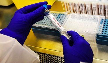 El mundo alcanza los 34,9 millones de contagios y más de un millón de muertos por coronavirus