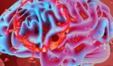 """Neurólogo: """"Es un hecho que el Covid-19 ataca también a las neuronas e invade el cerebro"""""""