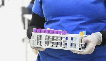 Región de Coquimbo registra un fallecido y 22 nuevos casos de Covid-19