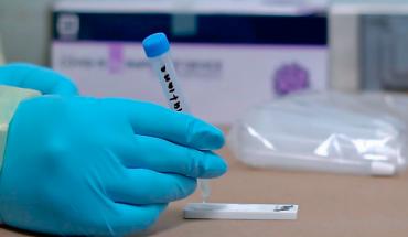 Ha realizado SSM más de 24 mil pruebas de antígeno en los Módulos de Enfermedades Respiratorias