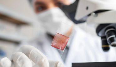 Encuentran proteína clave en propagación de Covid-19