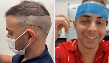 """Grego Rosello se realizó un implante capilar y mostró el proceso: """"Da un poco cringe"""""""