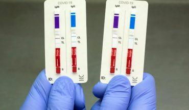 Investigadores desarrollaron un nuevo test rápido de anticuerpos para Covid-19