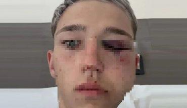 Imputan a cuatro rugbiers por la golpiza a un joven de 16 años en Mendoza